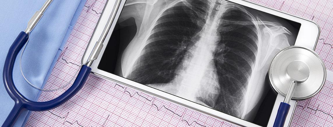 Pulmonary Services at Marshall Medical